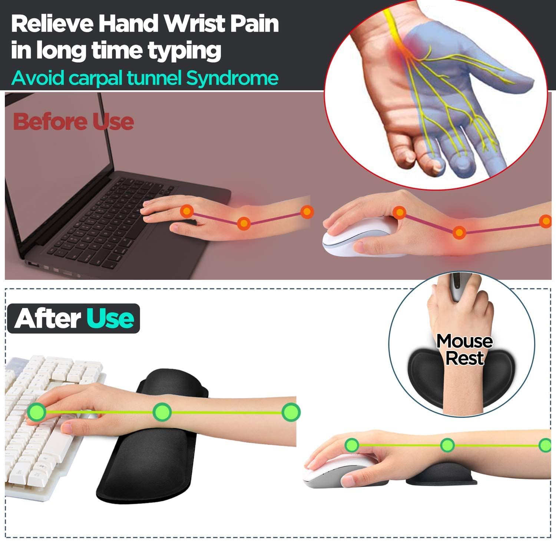 Wrist Pad for Ergonomic Workstation